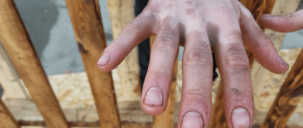 How to get wood Stain off Hands